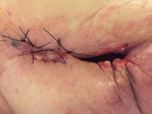 Abscess wound closed by tertiary intention after MPPT has removed the extensive infection in the soft tissue surrounding the infected bone which has now been surgically removed. The wound is stitched awaiting plastic surgery. Intention is flap grafting. MPPT is indicated also post-surgery, to ensure the graft takes and to prevent infection in the deeper areas. Pic. 15.10.2018. Cause: Cancer radiation-therapy 35 years prior created an abscess. First misdiagnosed as pressure ulcer / pressure sore.