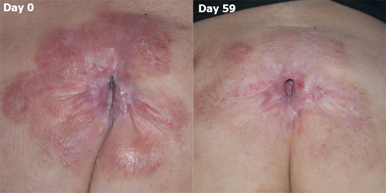Pressure ulcer / Pressure sore. Chronic and nonhealing. Comparison of Day 0 vs. Day 59 after MPPT (Acapsil) daily for 21 days, where after the wound was given time to heal in peace.