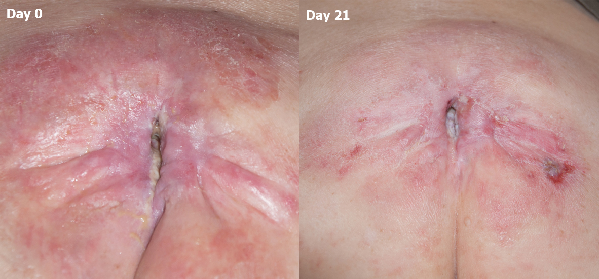 Pressure ulcer / Pressure sore. Chronic and nonhealing. Comparison of Day 0 vs. Day 21 after MPPT (Acapsil) daily for 21 days. Clear signs of reduction in infection and start of healing.