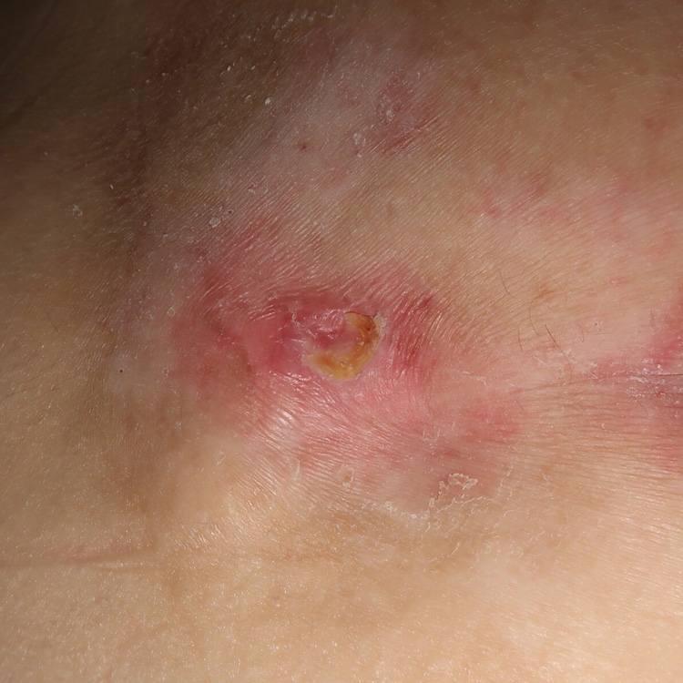 Category 2 pressure ulcer on Day 17 following application of Acapsil once daily for 3 days. The ulcer is closed.