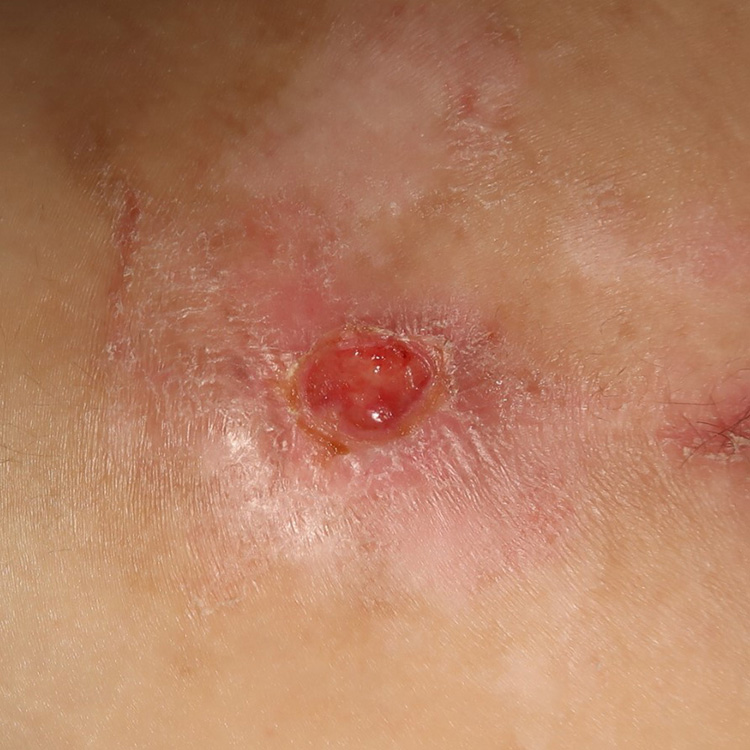 Category 2 pressure ulcer on Day 5 following application of Acapsil once daily for 3 days
