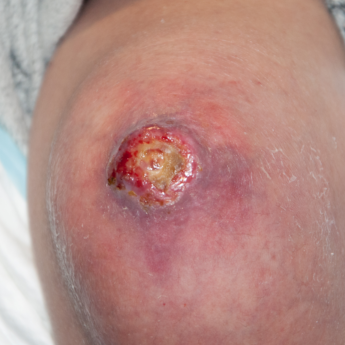 Infected wound on knee