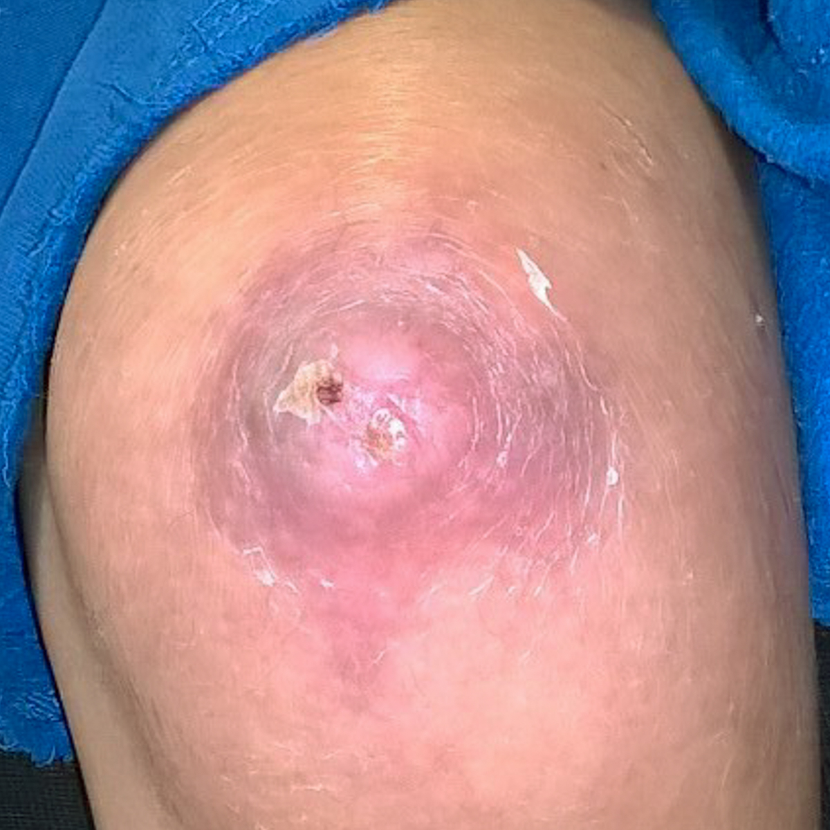 Healed wound on knww